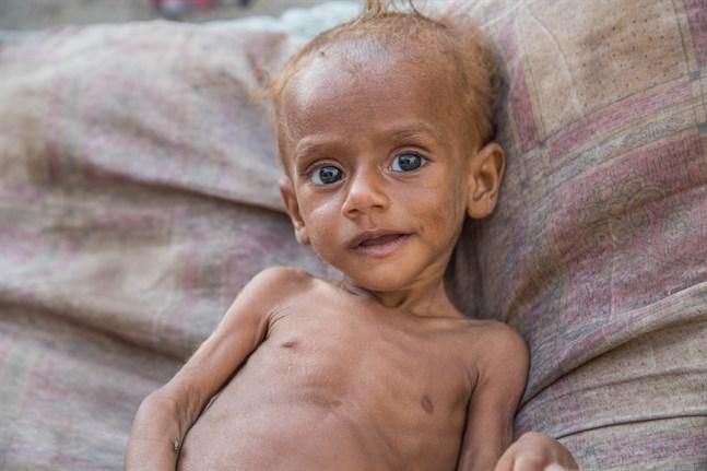 Den 13 månader gamla, svårt undernärda pojken Nusair fick vård i oktober och klarade sig tack vare Rädda Barnens humanitära hjälp i Hoidedah, Jemen.