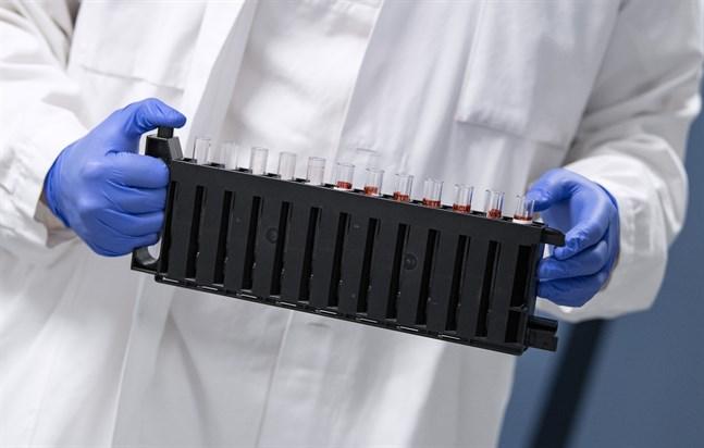 På bilden görs blodprover klara för att analyseras om de provtagna personerna bär på antikroppar mot coronaviruset. Bilden har ingen koppling till artikeln.