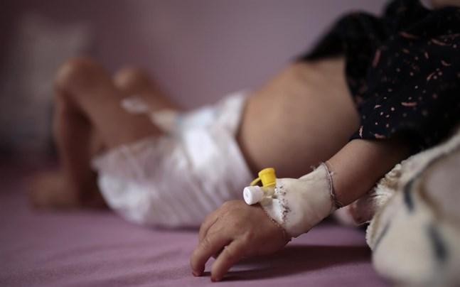 Jemen är i topp på listan över krigshärjade länder som akut behöver humanitärt stöd för att bland annat undvika svält bland barn.