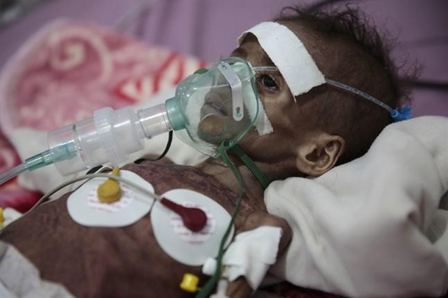 Den undernärda flickan Rahmah Watheeq vårdas på sjukhus i Sanaa. Bilden är från november.