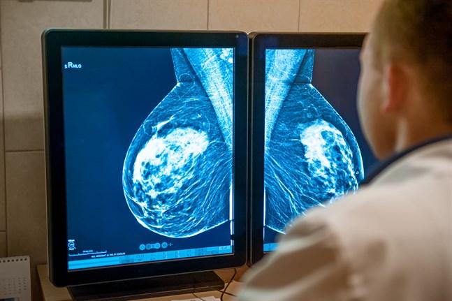 Åbo universitet och Åbo Akademi har forskat i hur aktiviteten i proteiner som reglerar tillväxten i cancerceller kan modifieras. Mammografi (bilden) görs för att upptäcka och behandla bröstcancer på ett så tidigt stadium som möjligt.