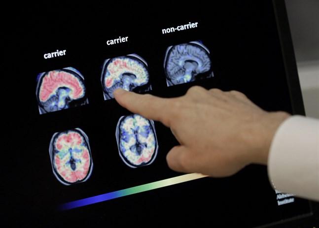 USA:s läkemedelsverk FDA har godkänt bioteknikföretaget Biogens behandling mot Alzheimers sjukdom. Arkivbild.